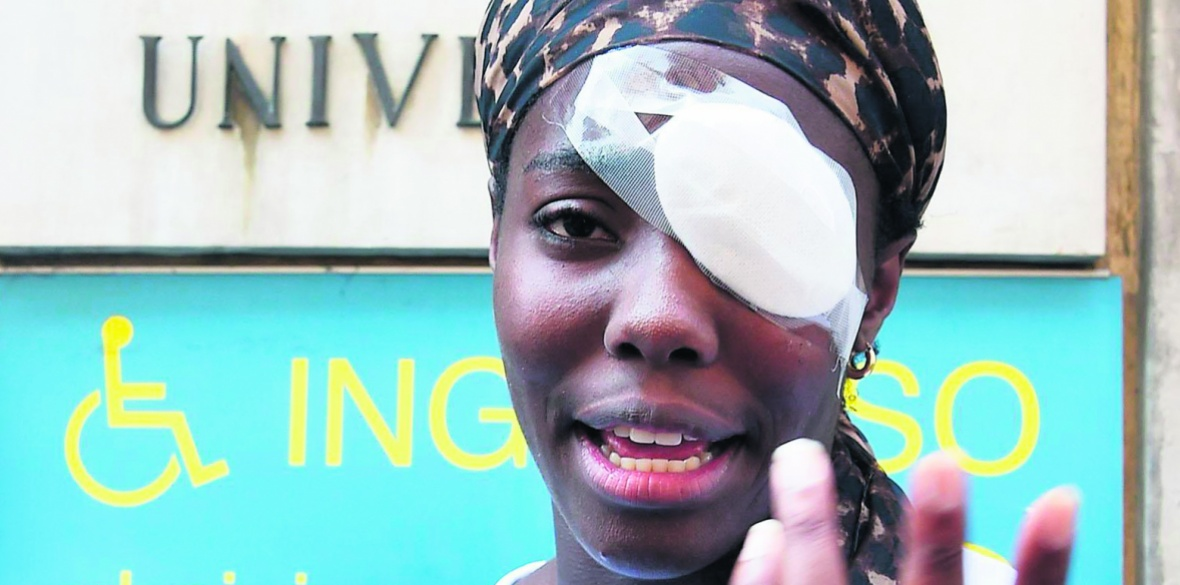 Daisy Osakue's eye injury
